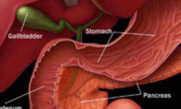 سرطان پانکراس، سرطان تندرو